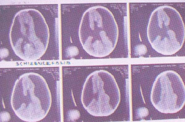 Neurocirugía_Vol2_Cap14