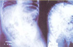 ¿Por dónde empezar con estiramientos dolor lumbar?