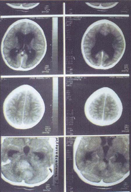 Neurocirugia_Vol2_Cap18