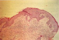 La enfermedad de la piel a las gatas. La eccema y su tratamiento